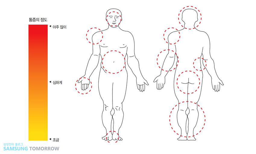신체 부위가 표시된 그림과 통증의 정도가 아주 많이, 심하게, 조금 등으로 표시된 그림이 있습니다.