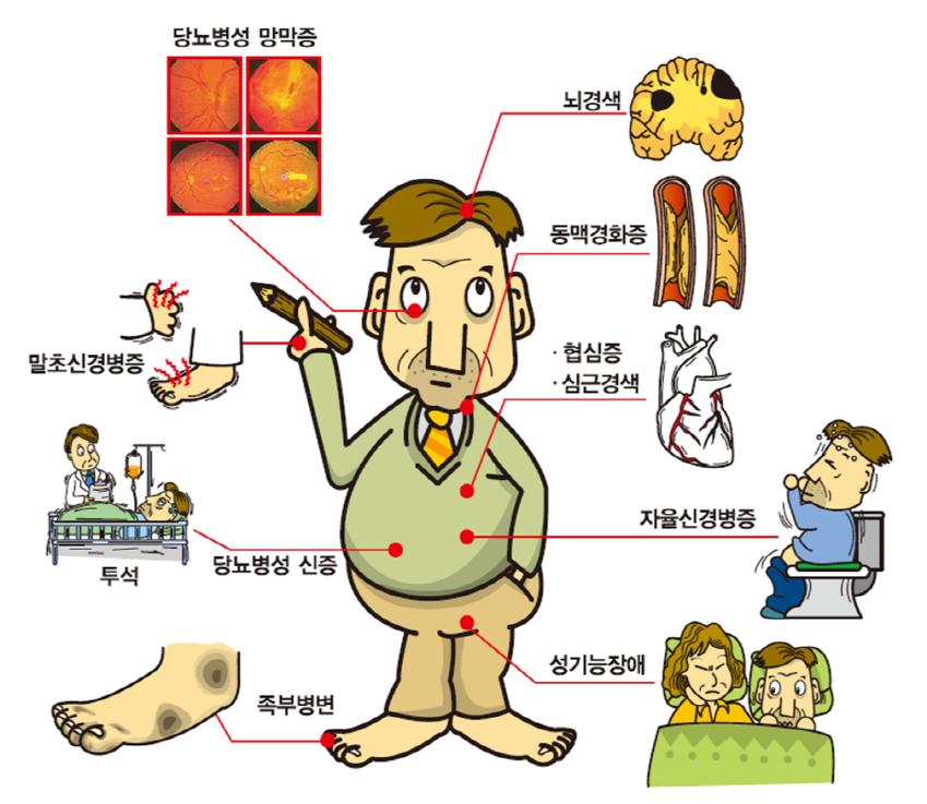 당뇨병성 망막증, 뇌경색, 동맥경화증, 말초신경병증, 협심증, 심근경색, 당뇨병성 신증, 자율신경병증, 성기능장애, 족부병변