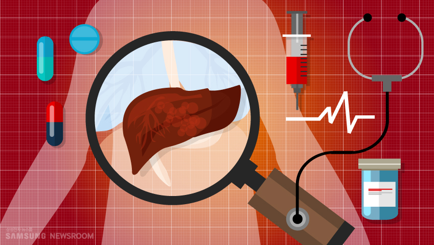혈액검사 그림 몸 속 간을 돋보기로 비추고 있는 사진