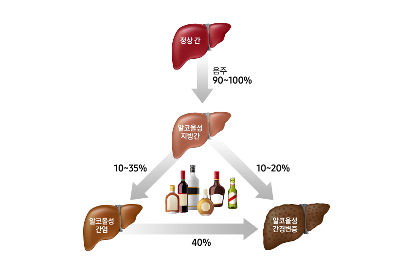 정상 간 > 알코올성 지방간 음주 90~100%  알코올성 지방간 > 알코올성 간염 10~35% 알코올성지방간 > 알코올성 간경변증 10~20% 알코올성간염 > 알코올성 간경변증 40%