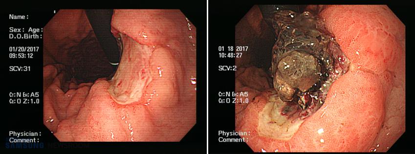 내시경으로 촬영한 정상인(왼쪽 사진)과 위·십이지장 궤양 환자의 위 윗부분