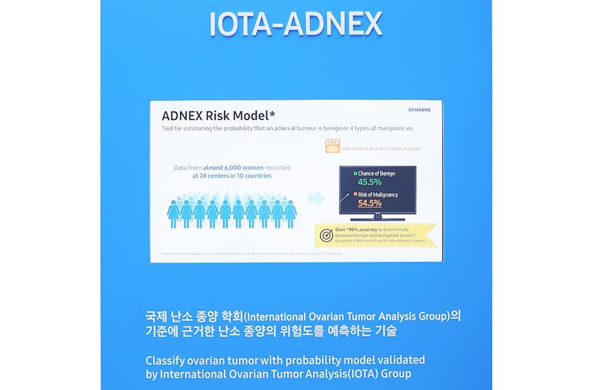 IOTA-ADNEX는 아홉 가지 분석 요소를 바탕으로 난소암의 악성 여부를 판단, 확률로 제시하는 기술이다 classify ovarian tumor with probability model validated by International Ovarian Tumor Analysis(IOTA) Group