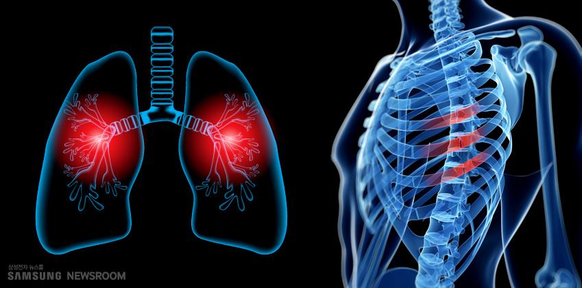폐와 갈비벼에 이상이 발생한 때를 시각적으로 알려주는 이미지. 흉통은 가슴막염이나 폐렴 증상일 수도 있으며, 길비뼈 골절 등으로도 나타날 수 있다.