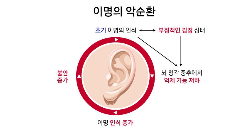 이명의 악순환. 초기: 이명의 인식, 부정적인 감정 상태. 뇌 청각 중추에서 억제 기능 저하. 이명 인식 증가. 불안 증가