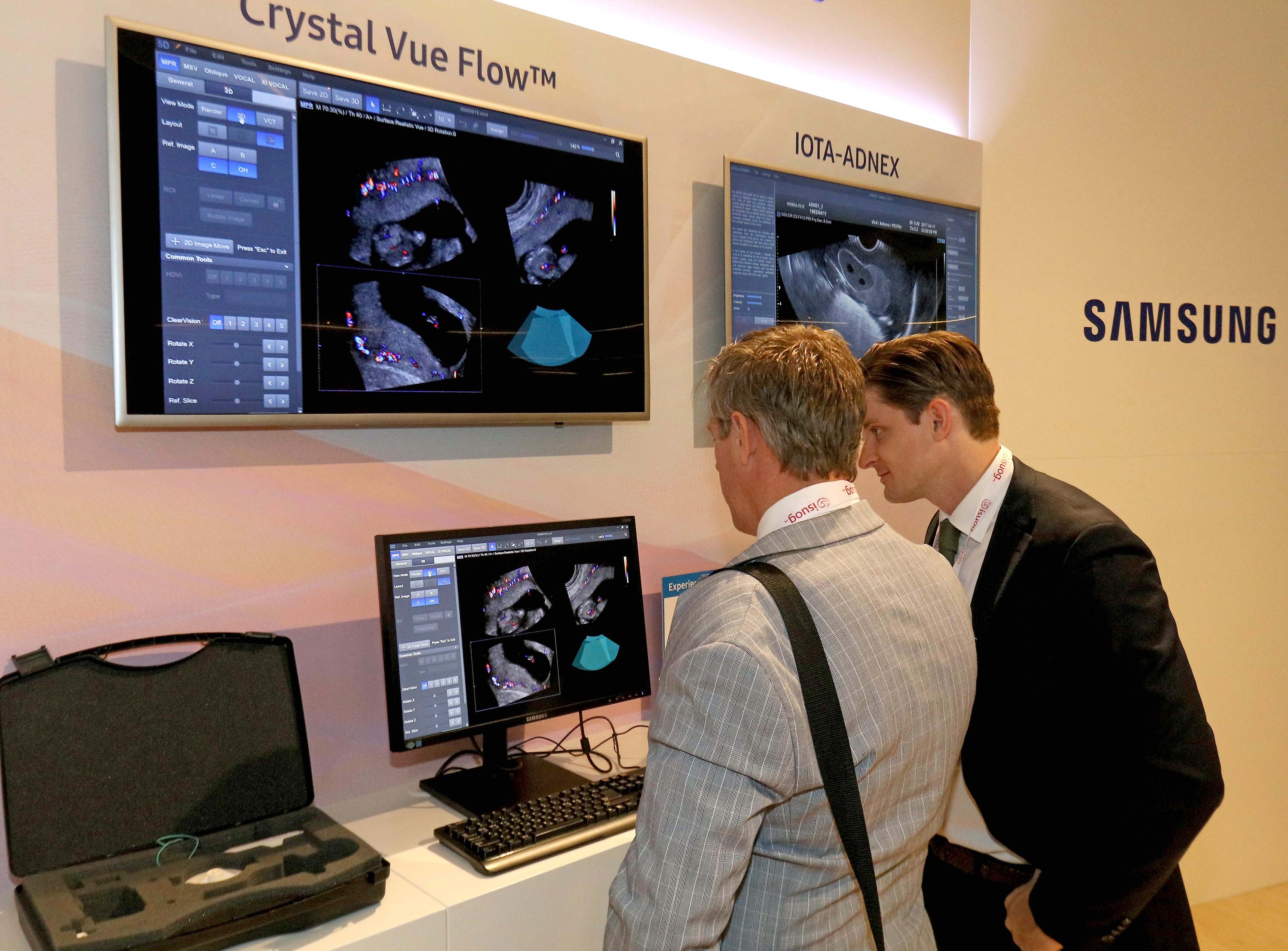 참관객들이 삼성 부스에서 인체 조직 내부를 마치 투시된 영상처럼 선명하게 표현해주는 Crystal Vue Flow™에 대해 살펴보고 있다