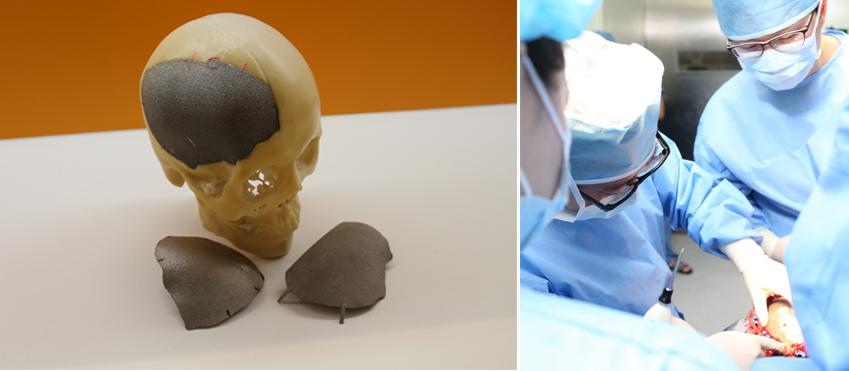 티타늄 합금을 이용한 두개골 부분 이식 수술 장면 (출처 : 한국생산기술연구원)